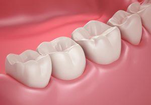 A lyukas fogak kellemetlen tünetei