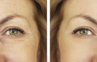 Fiatalítsa az arcbőrét látványosan, arclifting kezeléssel!