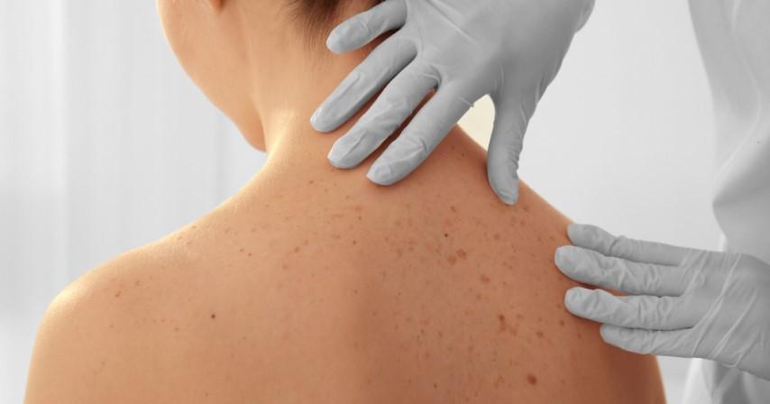 A bőrbetegségek kialakulása